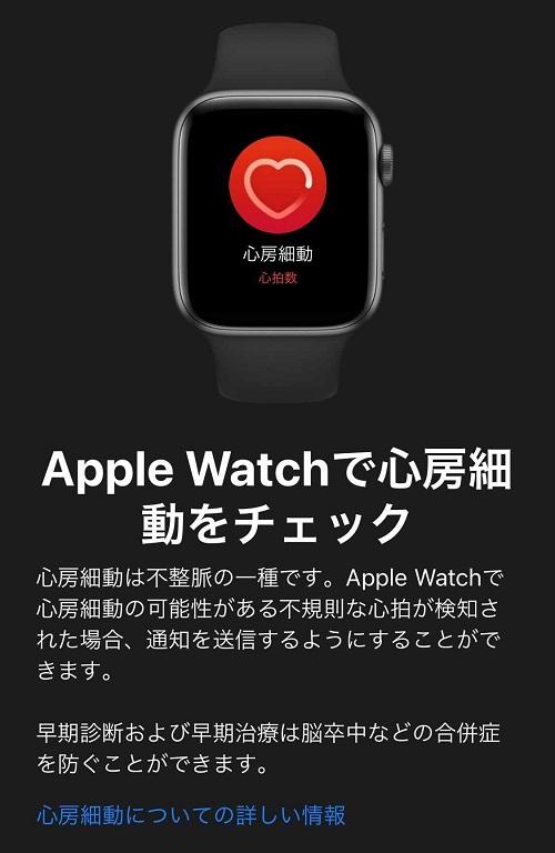 apple watch 不規則な心拍の通知